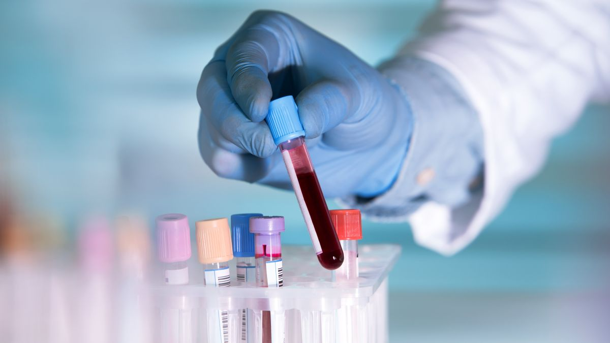 Raspberry Pi-powered blood test kit could help save lives someday